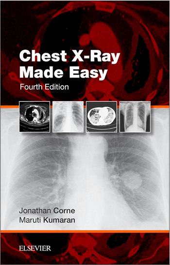 Chest X-Ray Made Easy 4th Edition