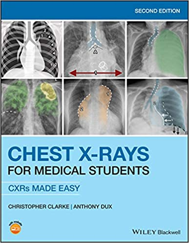 Chest X-Rays for Medical Students 2nd Edition