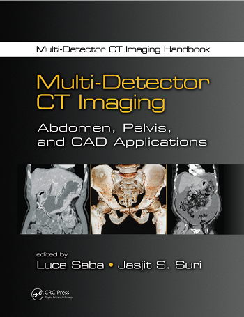 Multi-Detector CT Imaging: Abdomen, Pelvis, and CAD Applications 1st Edition