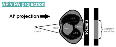 AP - Projection