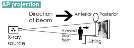 Anterior-Posterior (AP) projection
