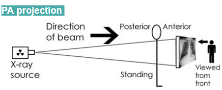 Posterior-Anterior (PA) projection