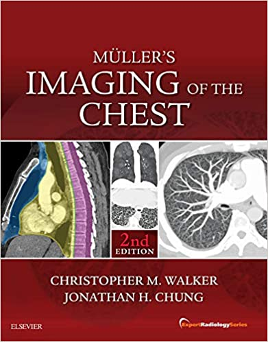 Muller's Imaging of the Chest 2nd Edition