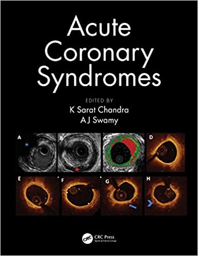Download Acute Coronary Syndromes 1st Edition Free PDF